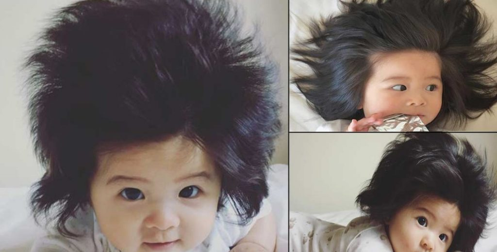 What Causes Hair Loss in Babies Prevention and Symptoms Check Now